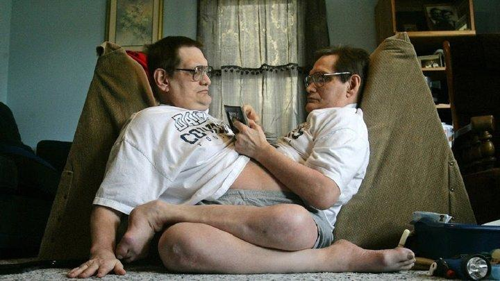 Самые старые сиамские близнецы в мире, ушли из жизни в США